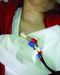 Centralni venski kateter